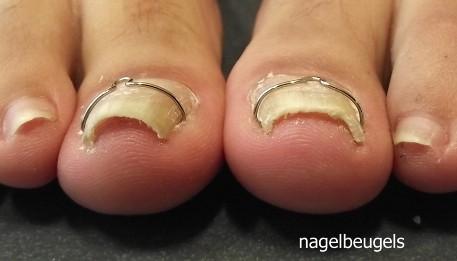 nagelbeugels
